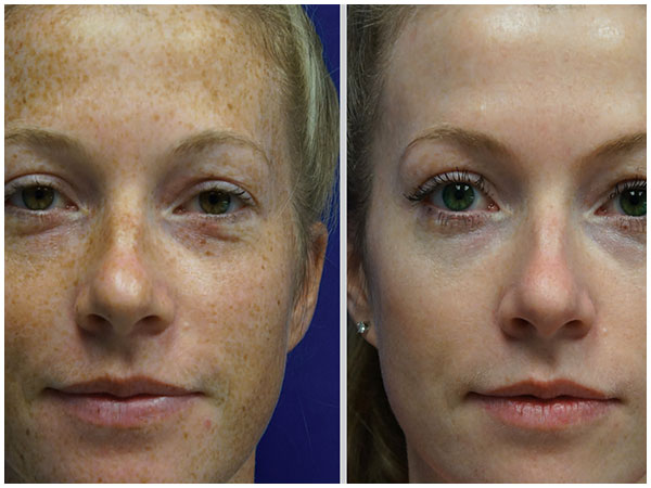 BBL Photofacial Laser Treatment Before and After