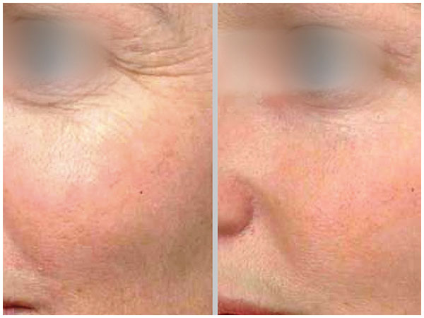 BBL Photofacial Treatment Before and After