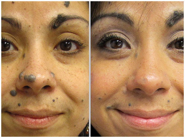 Deep Resurface TRL Laser Treatment Before and After