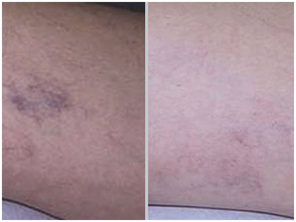 Leg Vein Treatment Before and After