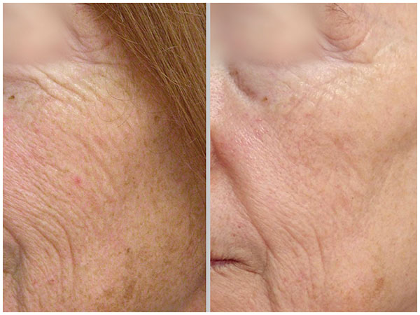 MicroLaserPeel Treatment Before and After