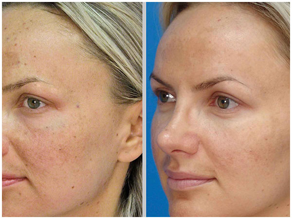 MicroLaserPeel Laser Treatment Before and After