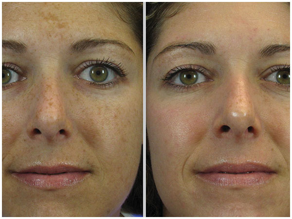 Combination Treatments Laser Treatment Before and After