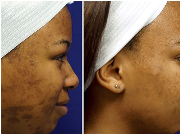 Fractional Profractional Treatment Before and After