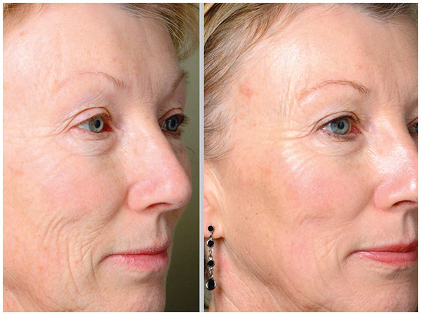 Fractional Profractional Laser Treatment Before and After