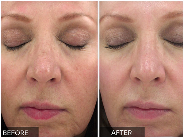 Halo Pro Laser Treatment Before and After