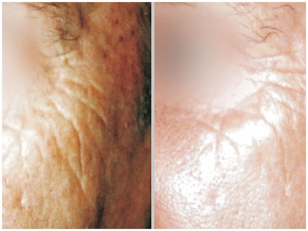 Nano Laser Peel Treatment Before and After