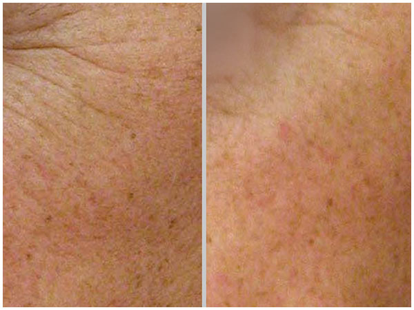 Nano Laser Peel Laser Treatment Before and After