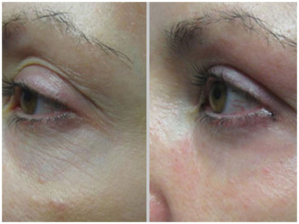 Pixel Perfect Laser Treatment Before and After