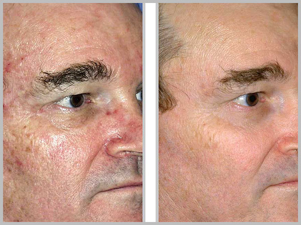 Microlaser Peel Before and After